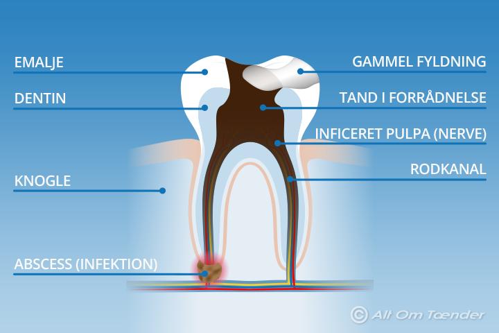 tænder med betændelse