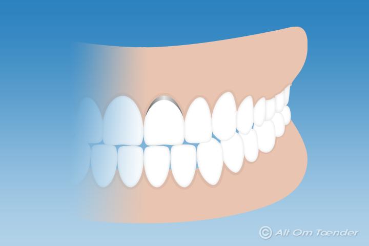isninger i tand efter fyldning