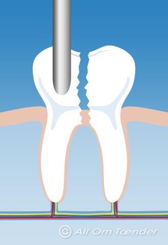 betændelse i kæben efter tandudtrækning