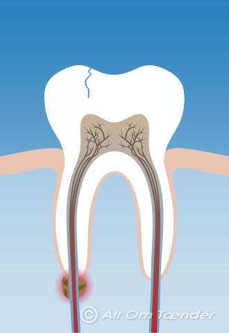 tandpine i rodbehandlet tand