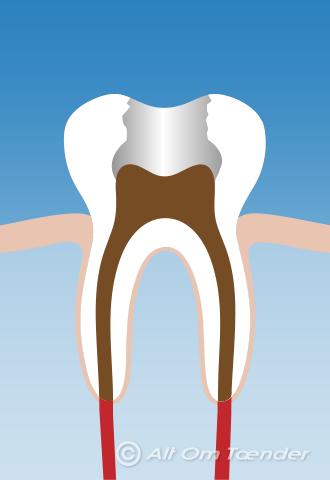 rodbehandlet tand øm