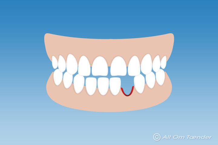 bider tænder sammen