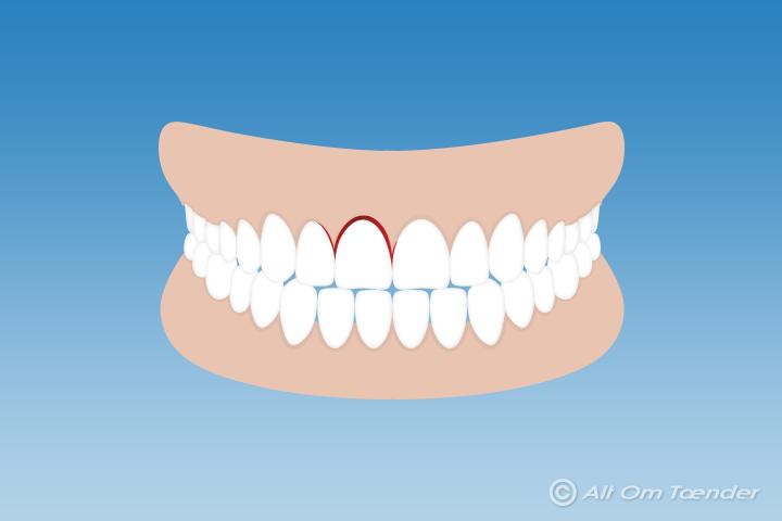 tand skubbet ind børn